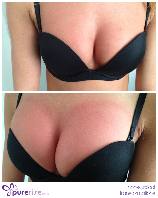 PureRise non-surgical breast enhancements